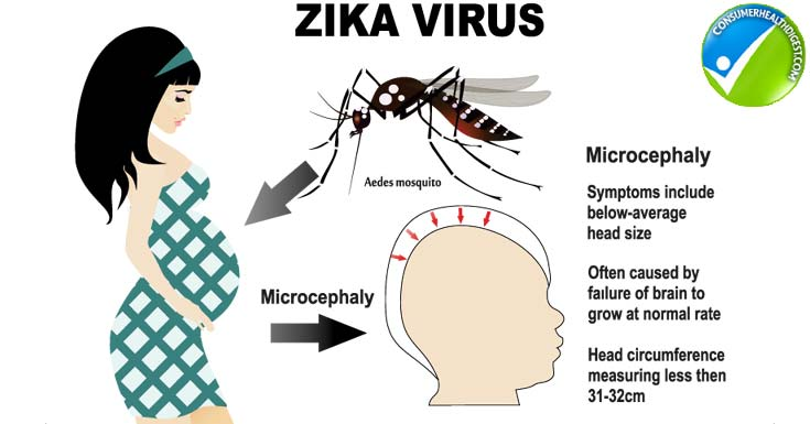 zika-virus-and-pregnancy